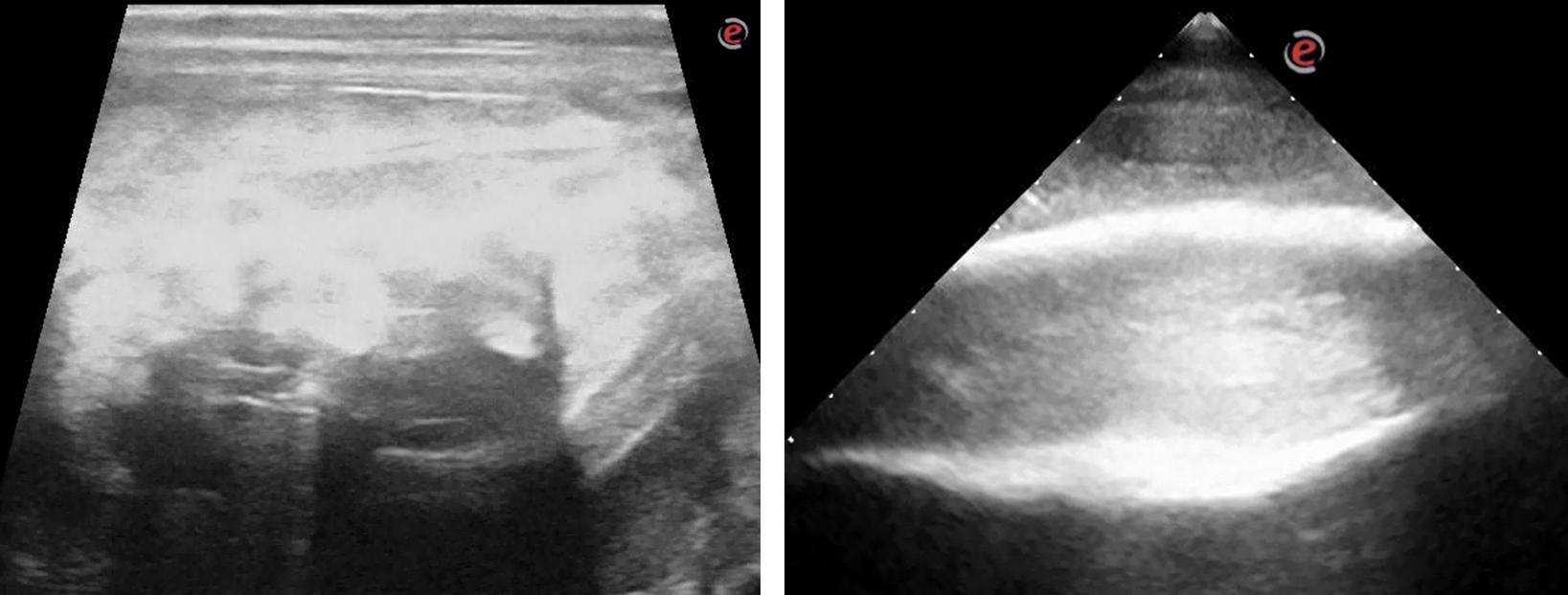 Links: onregelmatig, aangetast bot van de onderkaak. Rechts: glad beeld van een gezonde onderkaak. Let wederom op de hyperreflectie op 2/3 deel van het beeld.